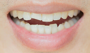 Smiling person with a chipped tooth