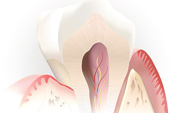 Cartoon depiction of inside of tooth