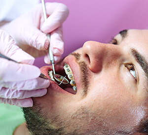 Man with braces undergoing dental examination