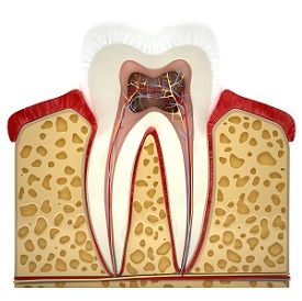 Root Canal in Richardson | Root Canal | EPO Dental Specialists