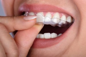 person inserting Invisalign in Richardson