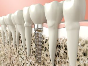 Dental implant placed using a cone beam scanner in Richardson.